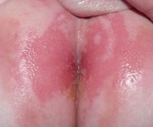 Dermatitis del Pañal. Fotografía Pablo García-Molina. CC